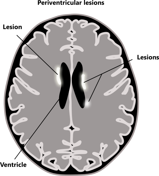 Multiple Sclerosis Ms